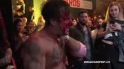 Actor, David Arquette, Gets Bloodied Up During 'Death Match' Wrestling Match.. Suffers Bloody Neck Wound!