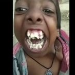 Sheesh: Chick Shows Off Her Mouth Full Of Teeth!