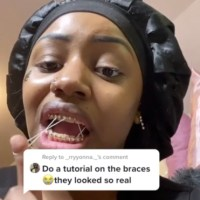 Hope She's Trolling: Chick Superglues Braces Onto Her Teeth!