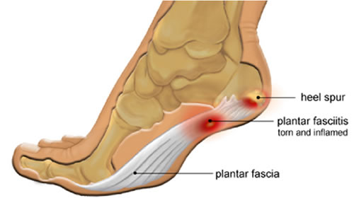 plantar fasciitis treatment and cure, Human Body
