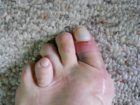 injured foot picture 2