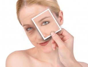 Top 8 questions about plastic surgery