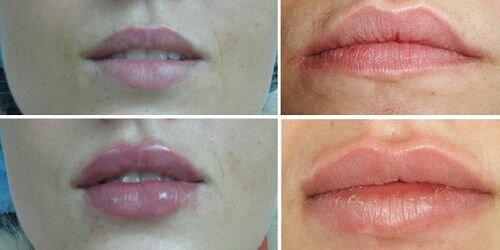 îndepărtați grăsimea în jurul buzelor)