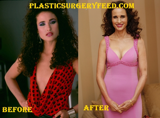 Andie MacDowell Breast Implants