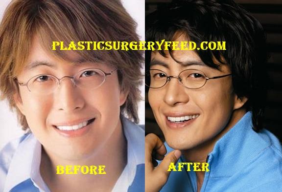 Bae Yong Joon Botox Plastic Surgery
