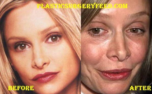 Calista Flockhart Lips Surgery