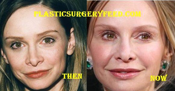 Calista Flockhart Nose Job Rhinoplasty