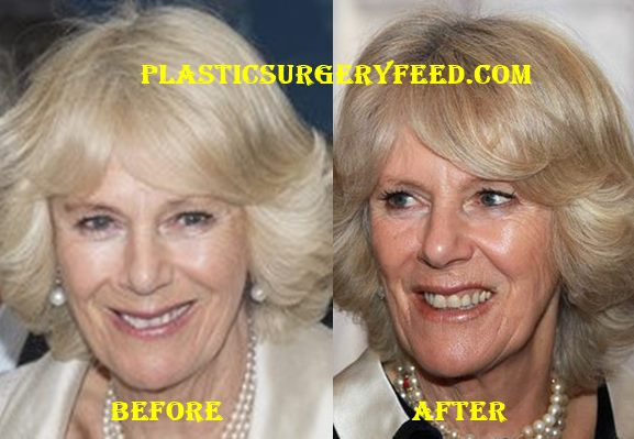Camilla Parker Bowles Lips Surgery