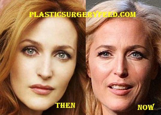 Gillian Anderson botox