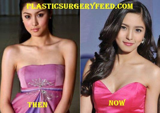 Kim Chiu Breast Implant