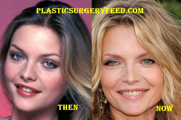 Michelle Pfeiffer Botox