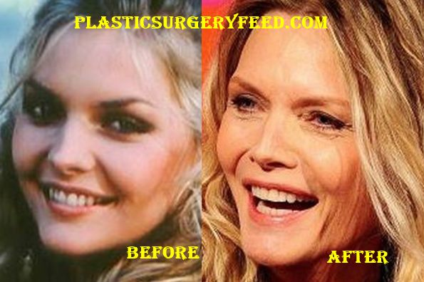Michelle Pfeiffer Nose Job Rhinoplasty