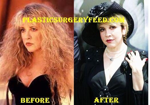 Stevie Nicks Boobs Job Breast Removal