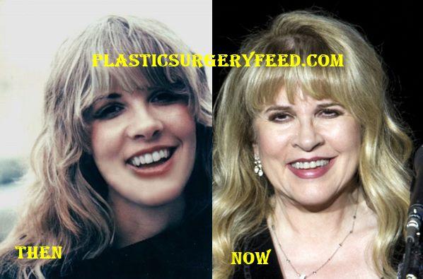 Stevie Nicks Botox and Facelift