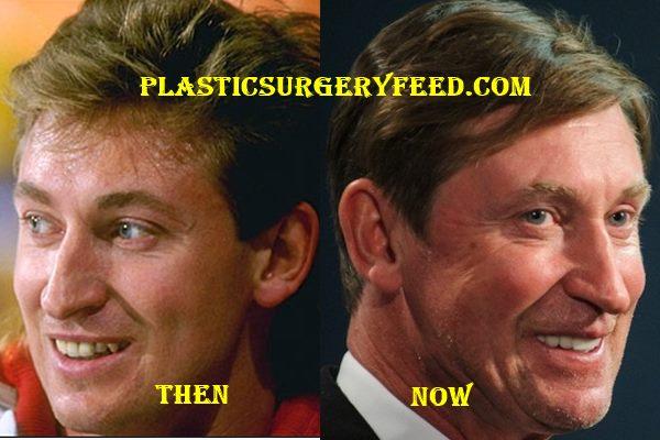 Wayne Gretzky Botox Surgery