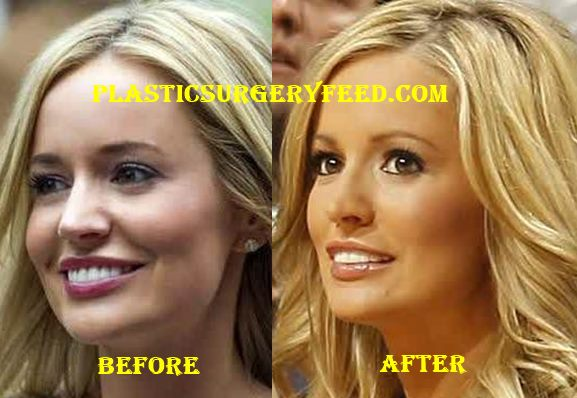 Emily Maynard Nose Job Rhinoplasty