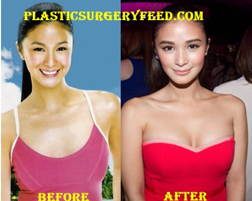 Heart Evangelista Breast Implants Boobs Job