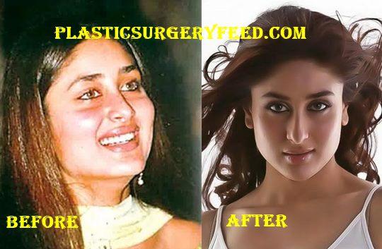 Kareena Kapoor Nose Job Rhinoplasty
