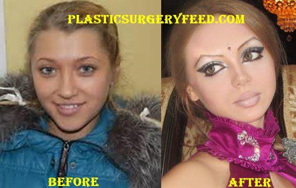Olga Oleynik Barbie Surgery
