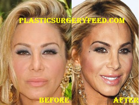 Adrienne Maloof Nose Job