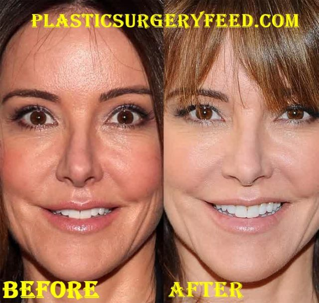 Christa Miller Botox Facelift Before After