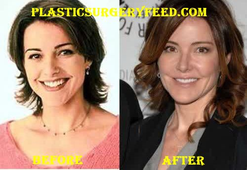 Christa Miller Cheeks Filler