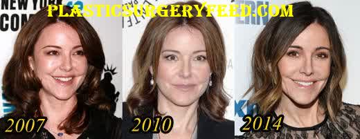 Christa Miller Nose Job Rhinoplasty