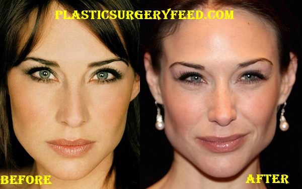 Claire Forlani Jaw Implant