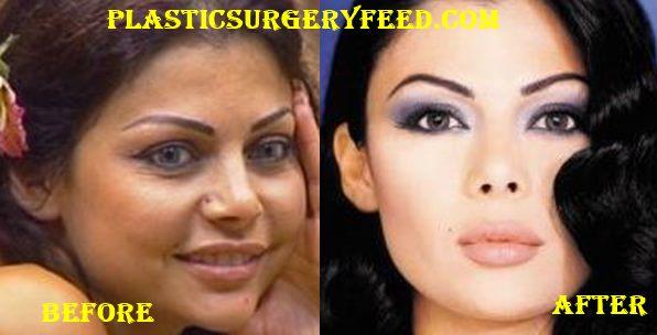Haifa Wehbe Botox Facelift