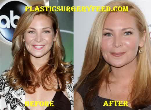 Jennifer Westfeldt Botox and Chin Implants
