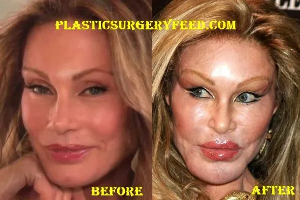 Jocelyn Wildenstein Before Plastic Surgery