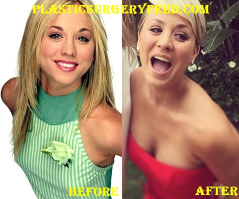 kaley cuoco plastic surgery - plastic surgery feed