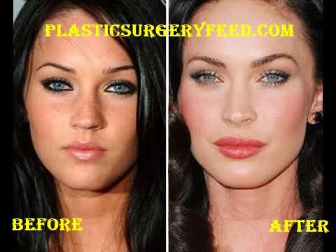 Megan Fox Botox