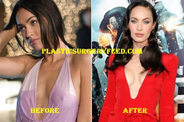 Megan Fox Breast Implants