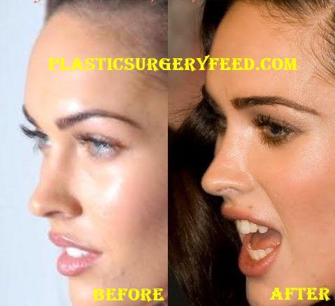 Megan Fox Nose Job Rhinoplasty