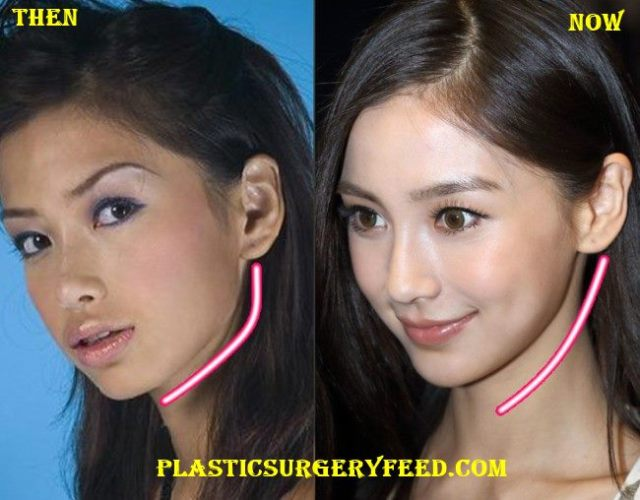 Angelababy Jaw Surgery