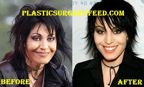 Joan Jett Cheeks Implant