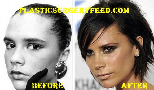 Victoria Beckham Botox and Facelift