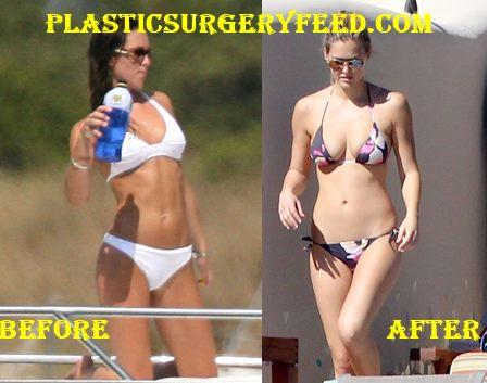 Kate Middleton Breast Implants