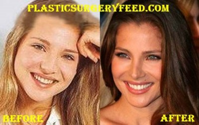 Elsa Pataky Nose Job and Eyelid Surgery