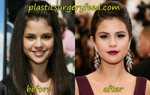 Selena Gomez Nose Job Rhinoplasty