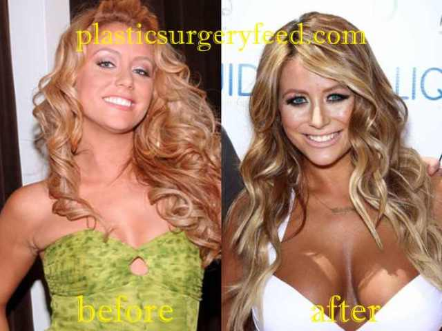 Aubrey O'Day Breast Implant