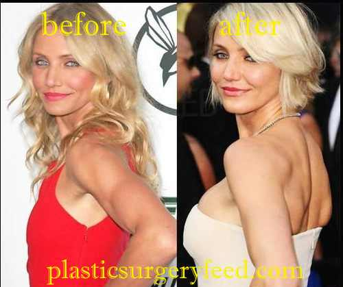 Cameron Diaz Breast Implant