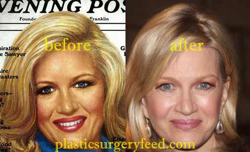 Diane Sawyer Facelift