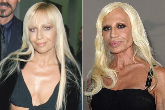 Donatella Versace Facial Plastic Surgery