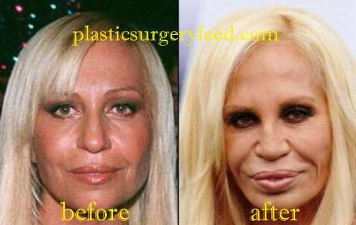 Donatella Versace Nose Job Rhinoplasty