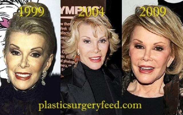 Joan River Plastic Surgery