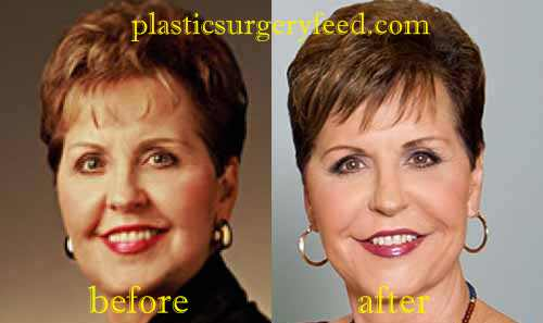 Joyce Meyer Facelift