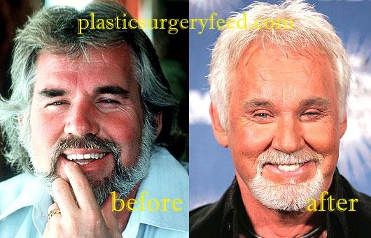 Kenny Rogers Botox
