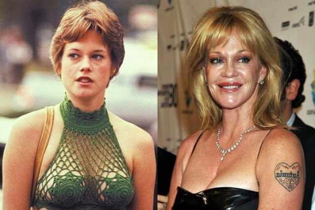 Melanie Griffith Breast Implant
